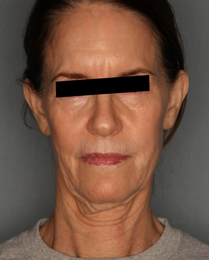 Best Facelift Surgery Chicago